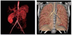 CT scanner | Công ty TNHH Thiết bị Việt Ba
